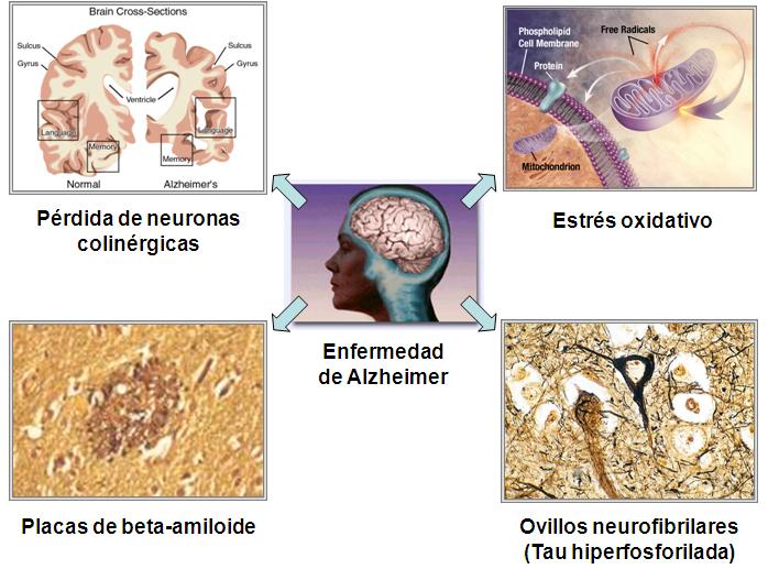 causas-alzheimer